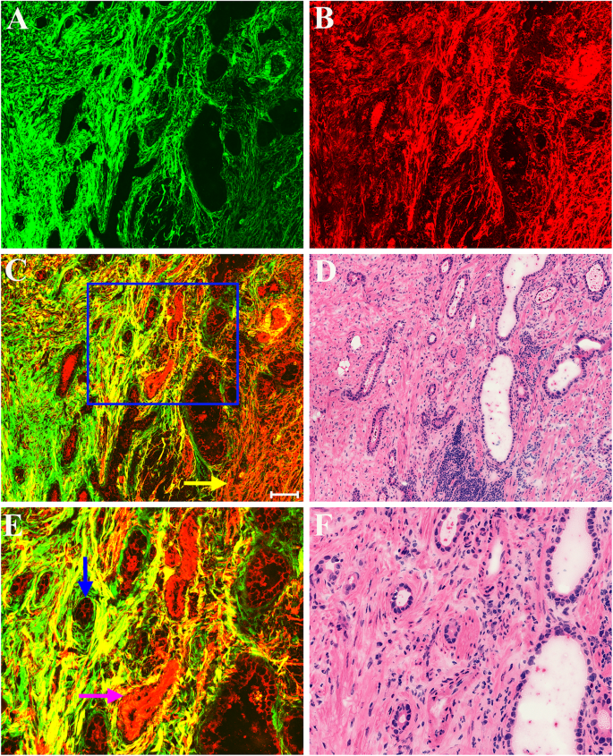 Multimodal multiphoton imaging for label-free monitoring of