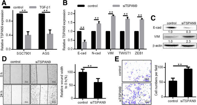 TSPAN9 and EMILIN1 synergistically inhibit the migration and