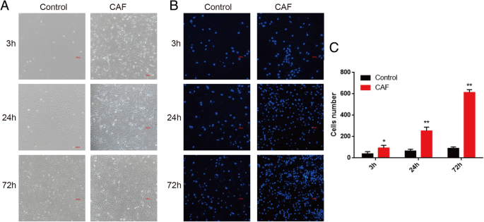 Epithelial-mesenchymal transition markers screened in a cell