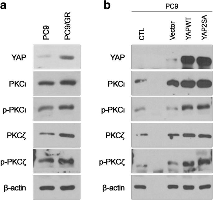 Clinical significance of atypical protein kinase C (PKCι and