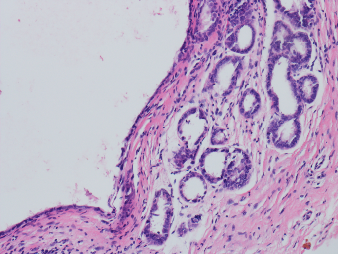 Clear cell carcinoma of the vagina, girls covered in sex juice