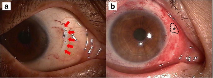 Optimal size of pterygium excision for limbal conjunctival
