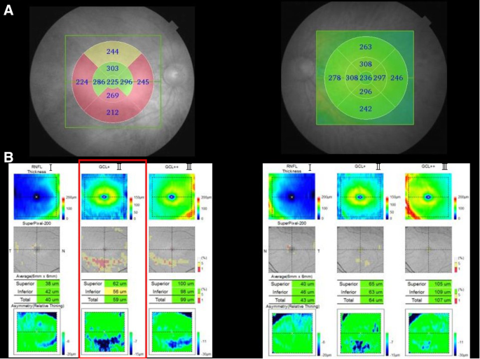 Optical coherence tomography findings in unilateral peripheral cone