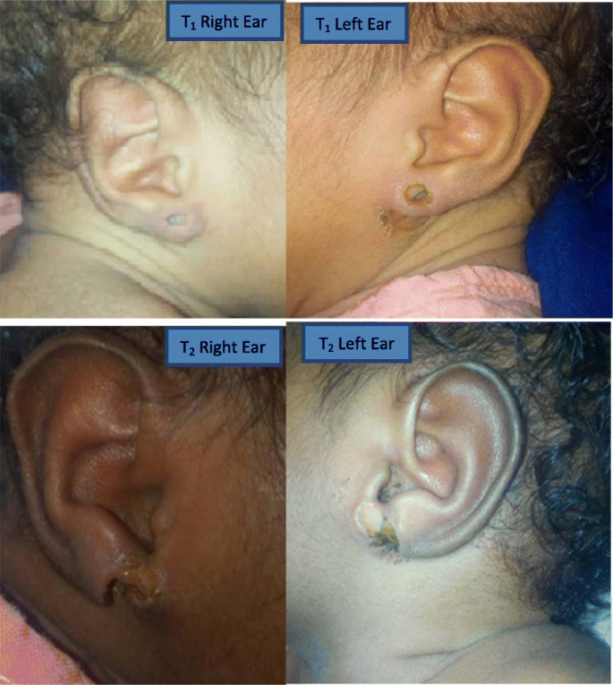 Necrotizing Soft Tissue Infection Of Both Ear Lobules Occurring