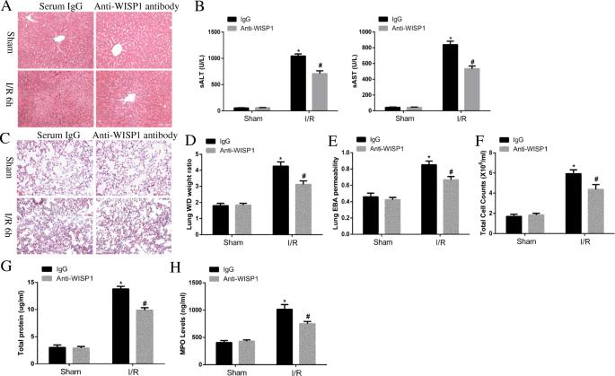 WISP1 mediates lung injury following hepatic ischemia