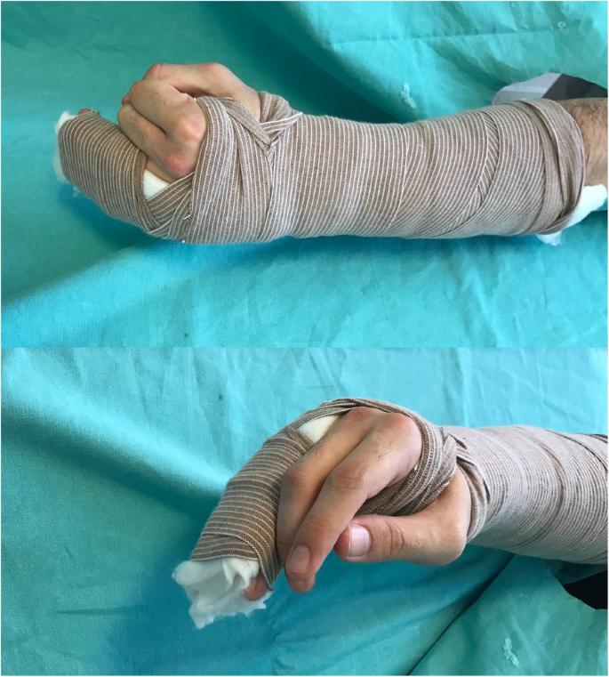 Comparison Of Functional Metacarpal Splint And Ulnar