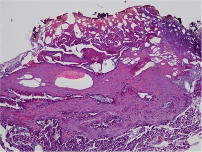 Non-ischemic laparoscopic partial nephrectomy using 1318-nm diode