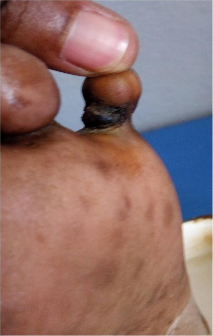 Ainhum, a rare mutilating dermatological disease in a female