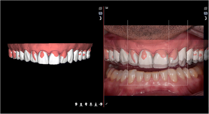 Fully digital workflow, integrating dental scan, smile