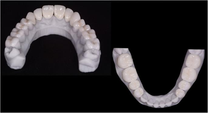 Fully digital workflow, integrating dental scan, smile