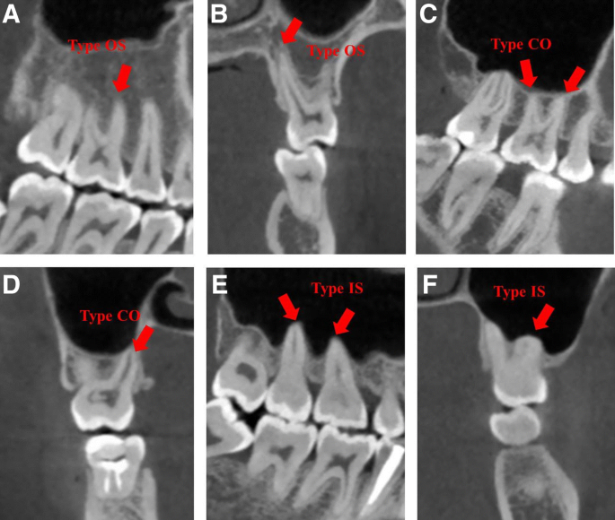 Evaluation of the relationship between maxillary posterior