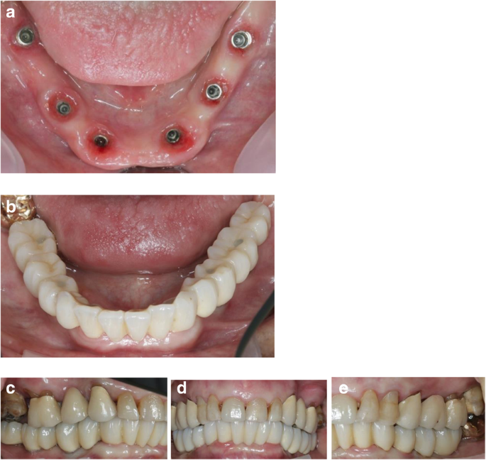 Computer-assisted, template-guided immediate implant