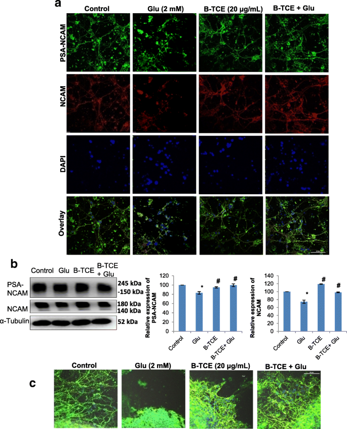 Tinospora cordifolia as a potential neuroregenerative