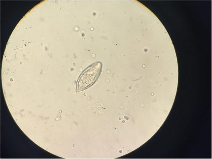 schistosomiasis of bladder