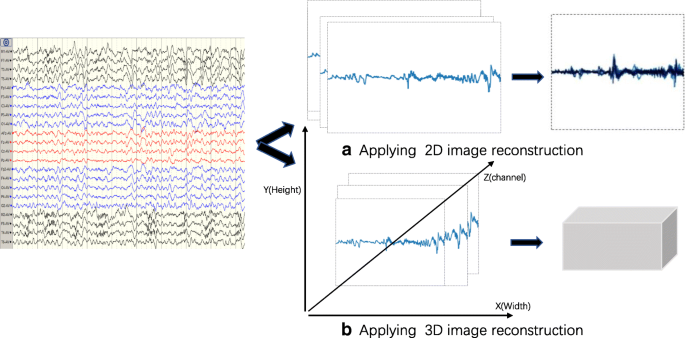 Automatic seizure detection using three-dimensional CNN
