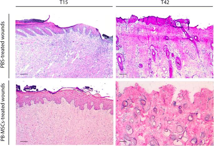 Allogeneic mesenchymal stem cells improve the wound healing