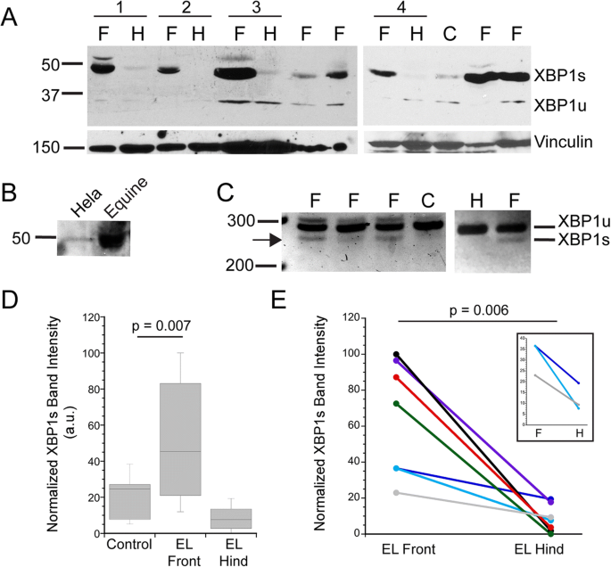 Detection of endoplasmic reticulum stress and the unfolded protein