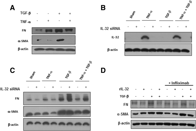 IL-32γ attenuates airway fibrosis by modulating the integrin-FAK