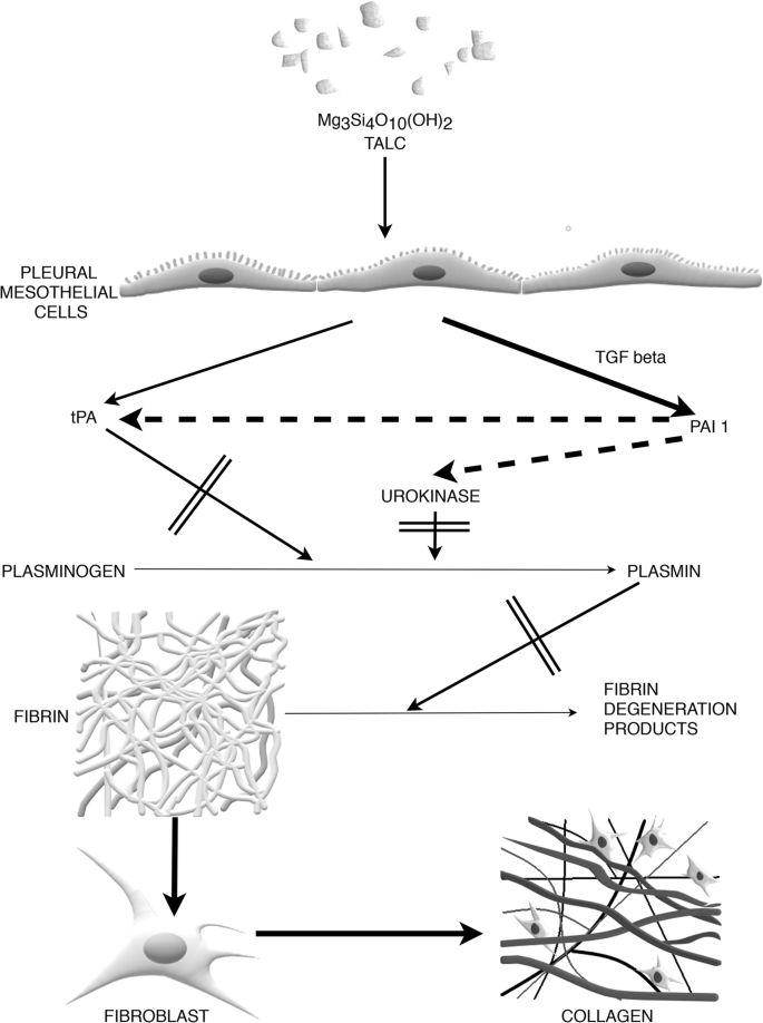 Chemical Pleurodesis A Review Of Mechanisms Involved In Pleural Space Obliteration Respiratory Research Full Text