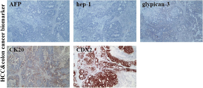 Establishment And Characterization Of A Cell Line Hcs1220 From Human Liver Metastasis Of Colon Cancer Cancer Cell International Full Text