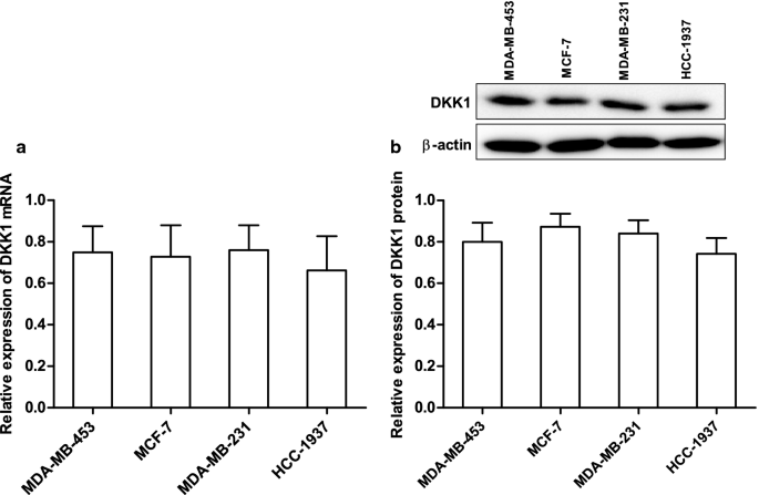 DKK1 inhibits breast cancer cell migration and invasion