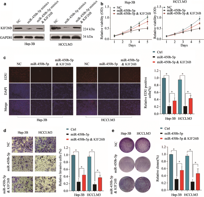 miR-450b-5p loss mediated KIF26B activation promoted hepatocellular