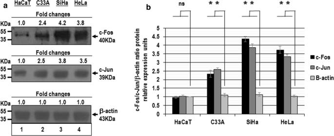 Transregulation of microRNA miR-21 promoter by AP-1 transcription ...