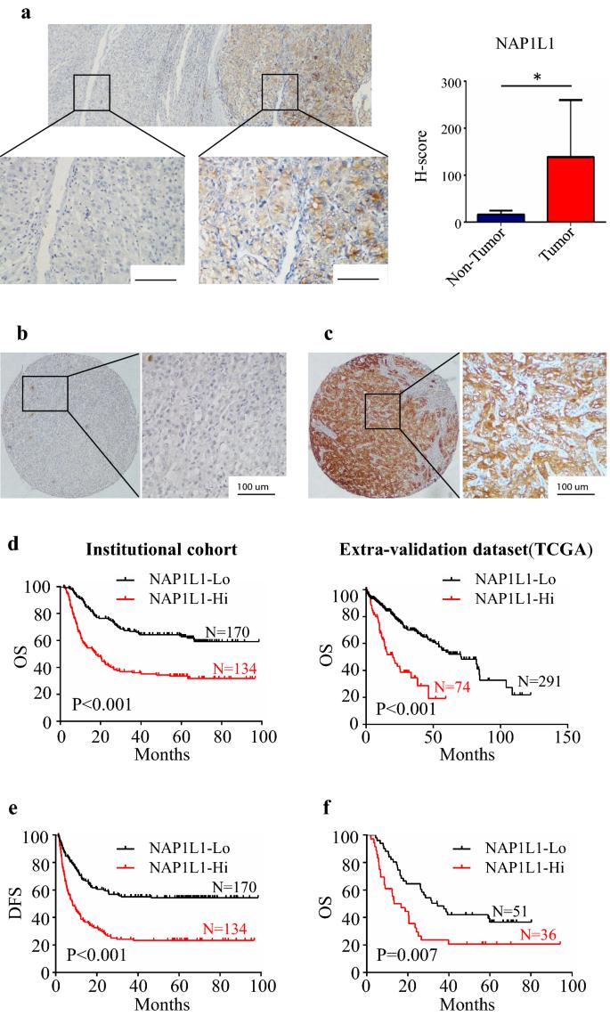 NAP1L1 is a prognostic biomarker and contribute to