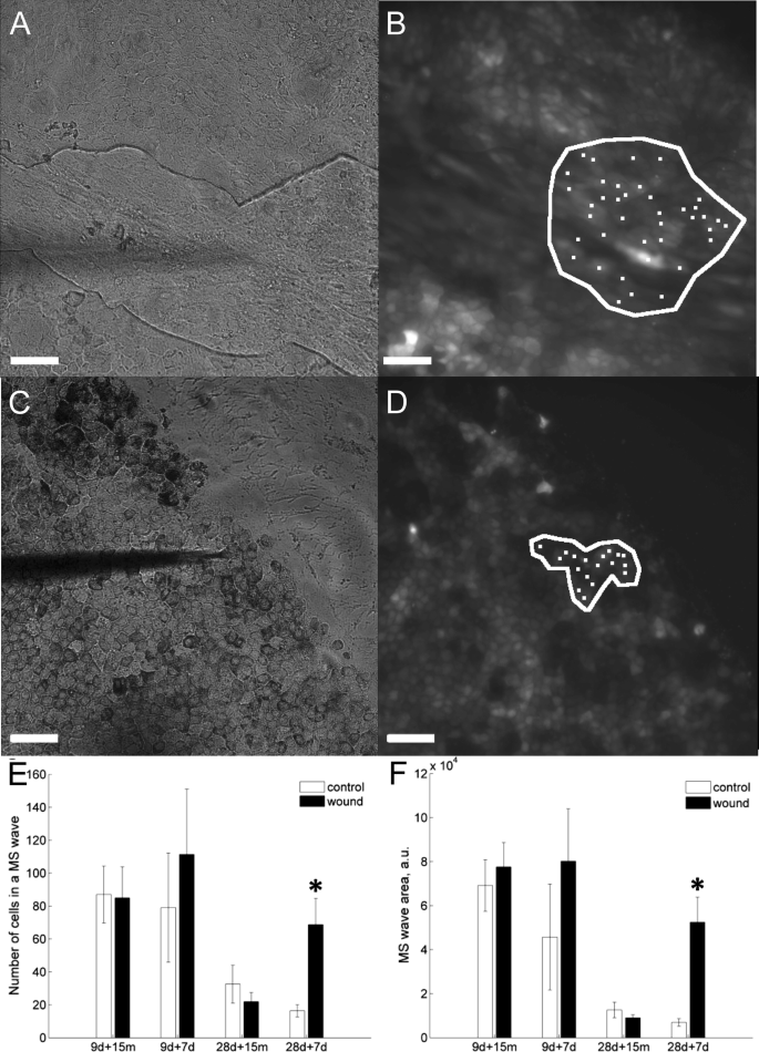 Wound healing of human embryonic stem cell-derived retinal pigment