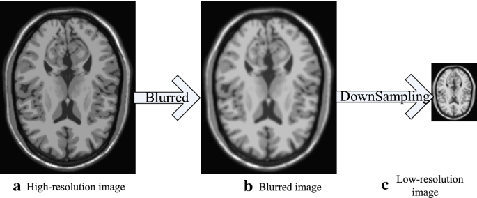 Fusing multi-scale information in convolution network for MR image