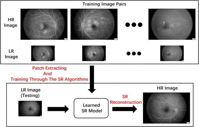 A super-resolution method-based pipeline for fundus