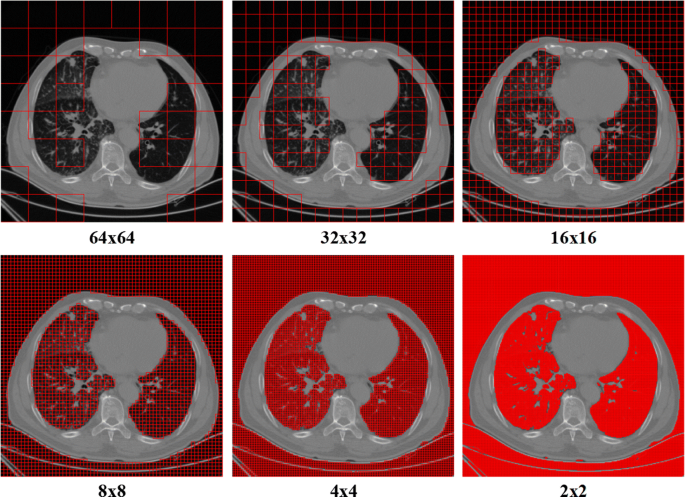 Segmentation of lung parenchyma in CT images using CNN