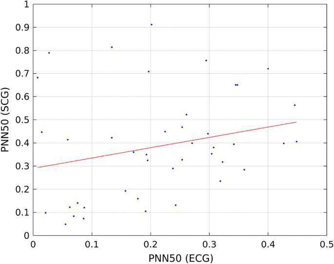 Comparison of HRV indices obtained from ECG and SCG signals from