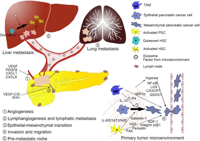 Tumor Microenvironment Participates In Metastasis Of Pancreatic Cancer Springerlink