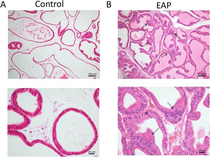 A prostatitis keleti orvostudomány kezelése Horsetail mező gyógyító tulajdonságok prosztatitis