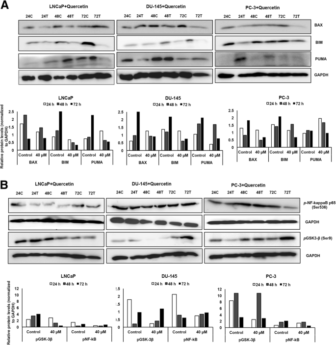Quercetin inhibits prostate cancer by attenuating cell