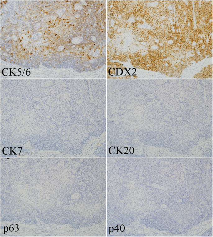 The origin of p40-negative and CDX2-positive primary squamous cell