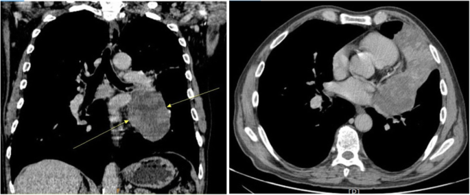 sarcoma cancer found in the lungs