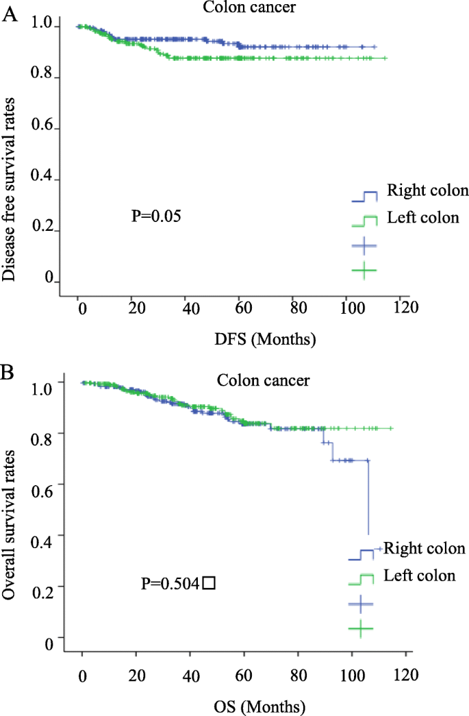Left Colon As A Novel High Risk Factor For Postoperative Recurrence Of Stage Ii Colon Cancer World Journal Of Surgical Oncology Full Text