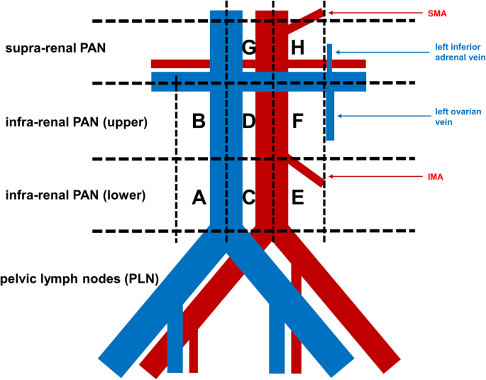 Metastasis To Para Aortic Lymph Nodes Cephalad To The Renal Veins In Patients With Ovarian Cancer World Journal Of Surgical Oncology Full Text