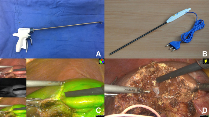 Safety and effectiveness evaluation of a two-handed technique combining  harmonic scalpel and laparoscopic Peng's multifunction operative dissector  in laparoscopic hemihepatectomy | World Journal of Surgical Oncology | Full  Text