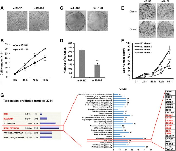 MicroRNA-188 suppresses G 1 /S transition by targeting