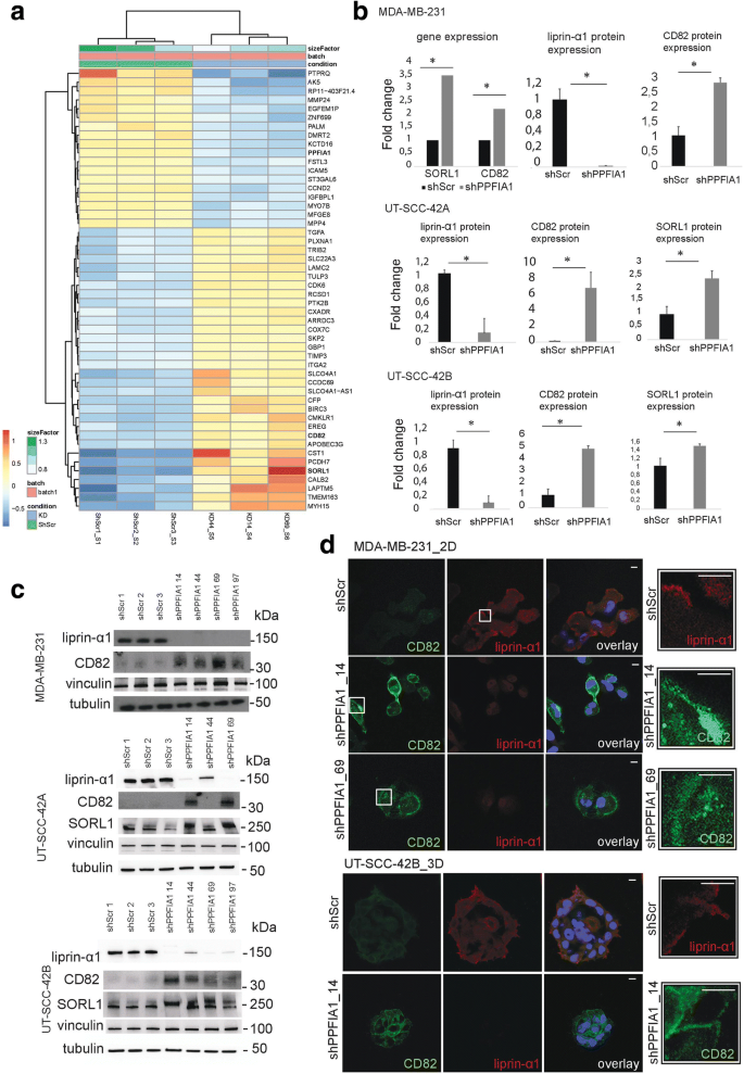 Liprin-α1 modulates cancer cell signaling by transmembrane protein