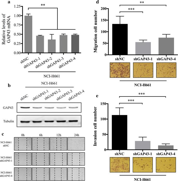 GAP43, a novel metastasis promoter in non-small cell lung cancer ...