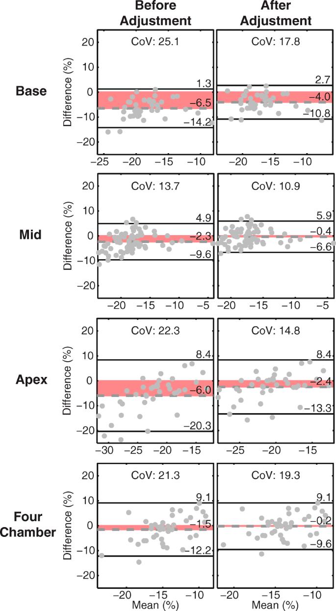 Comparison of left ventricular strains and torsion derived