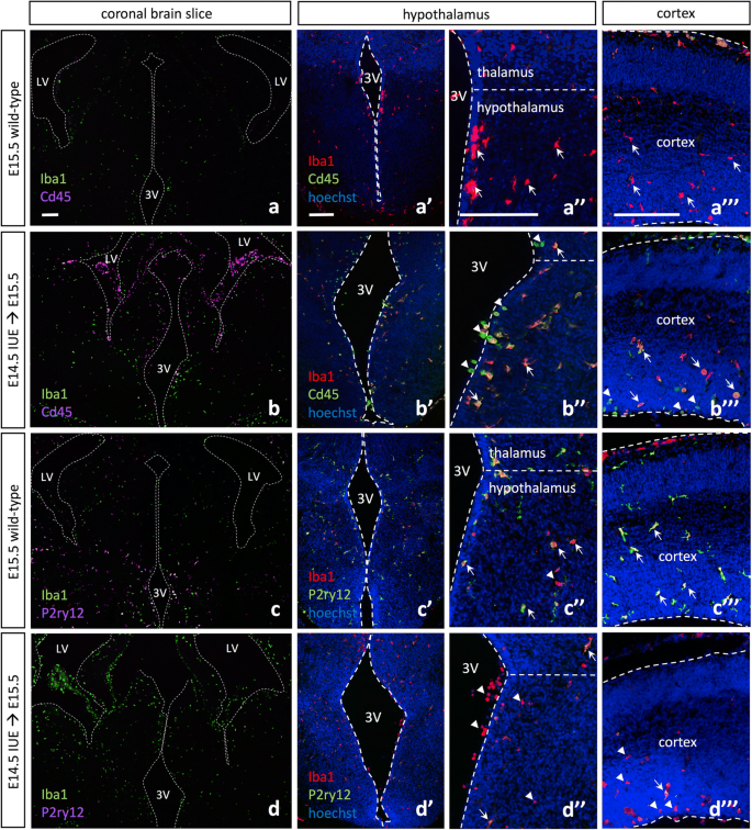 In utero electroporation induces cell death and alters