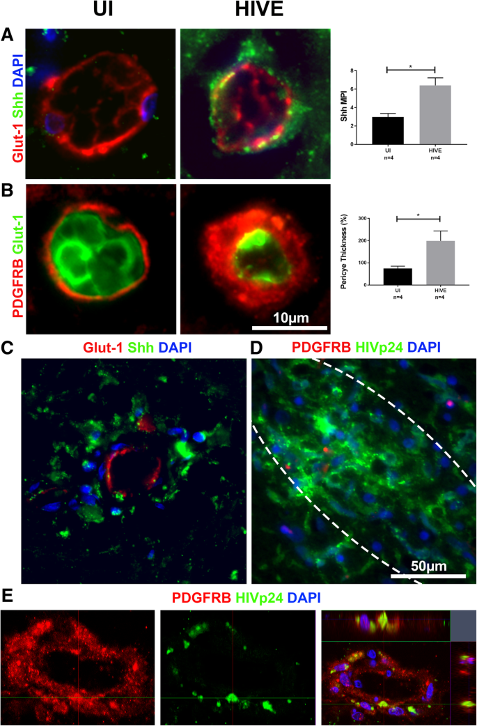 Dysregulation of sonic hedgehog pathway and pericytes in the brain
