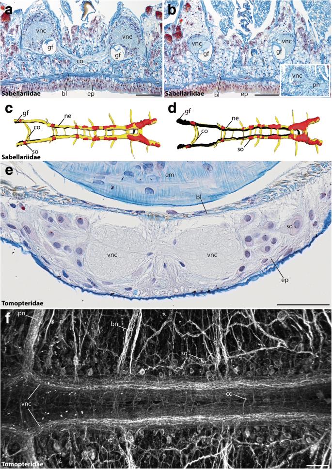Convergent evolution of the ladder-like ventral nerve cord