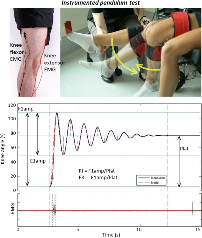 Predictive value of the pendulum test for assessing knee