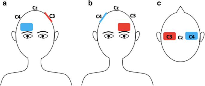 [ARTICLE] Searching for the optimal tDCS target for motor rehabilitation – Full Text